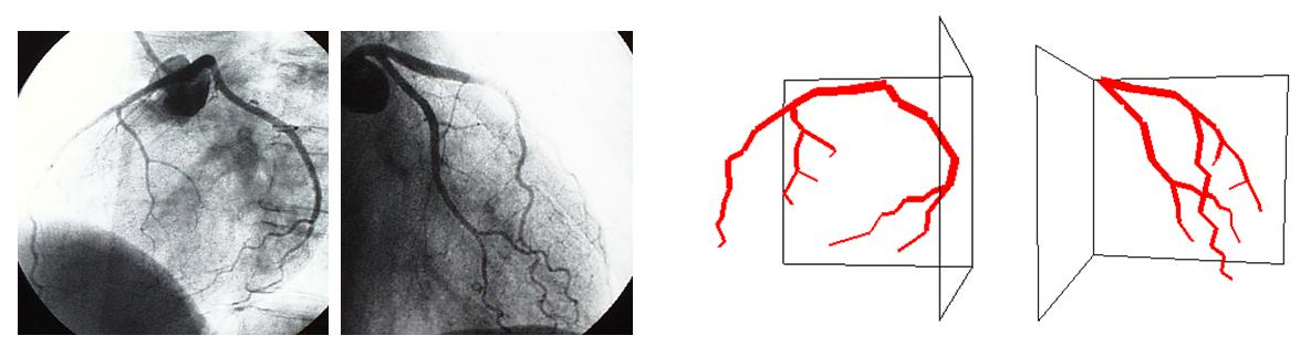 coronary heart disease thesis